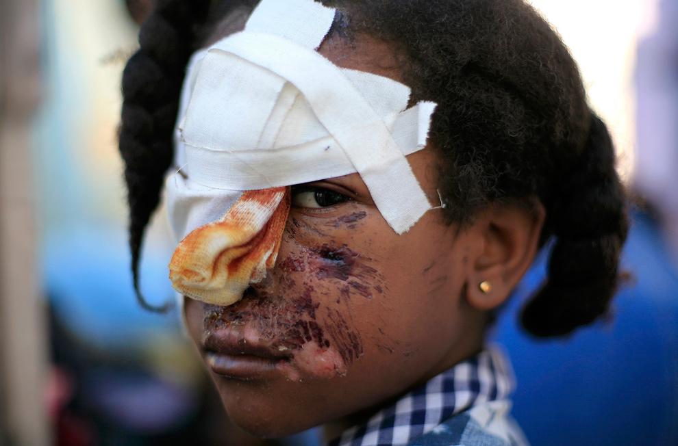 17. Раненый ребенок в разбитом наспех полевом госпитале в Порт-о-Пренс 16 января 2010 года. (REUTERS/Kena Betancur)