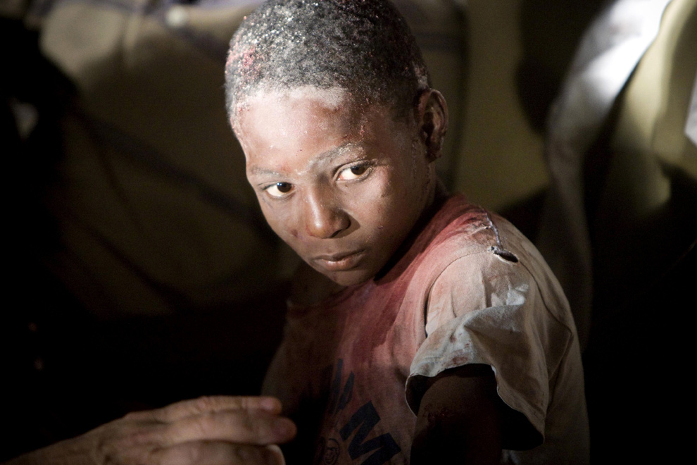 15. Раненому мальчику помогают медики в отеле Вилла Креоле в Порт-о-Пренс после землетрясения в 7.0 баллов. (AP Photo/Montreal La Presse, Ivanoh Demers)