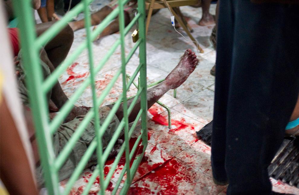 21. Выжившие после землетрясения сидят на окровавленном полу в больнице в Петионвилле 12 января в Порт-о-Пренс. (Frederic Dupoux/Getty Images)