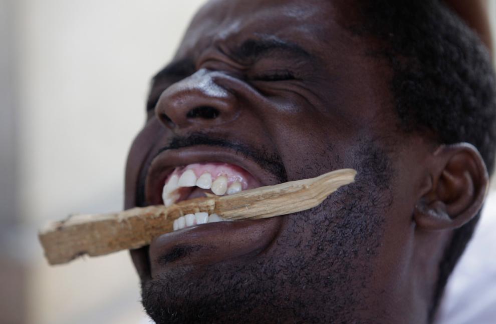 30. Раненый в результате землетрясения мужчина зажал зубами кусок дерева во время операции в госпитале Порт-о-Пренс 18 января 2010 года. (AP Photo/Ariana Cubillos)
