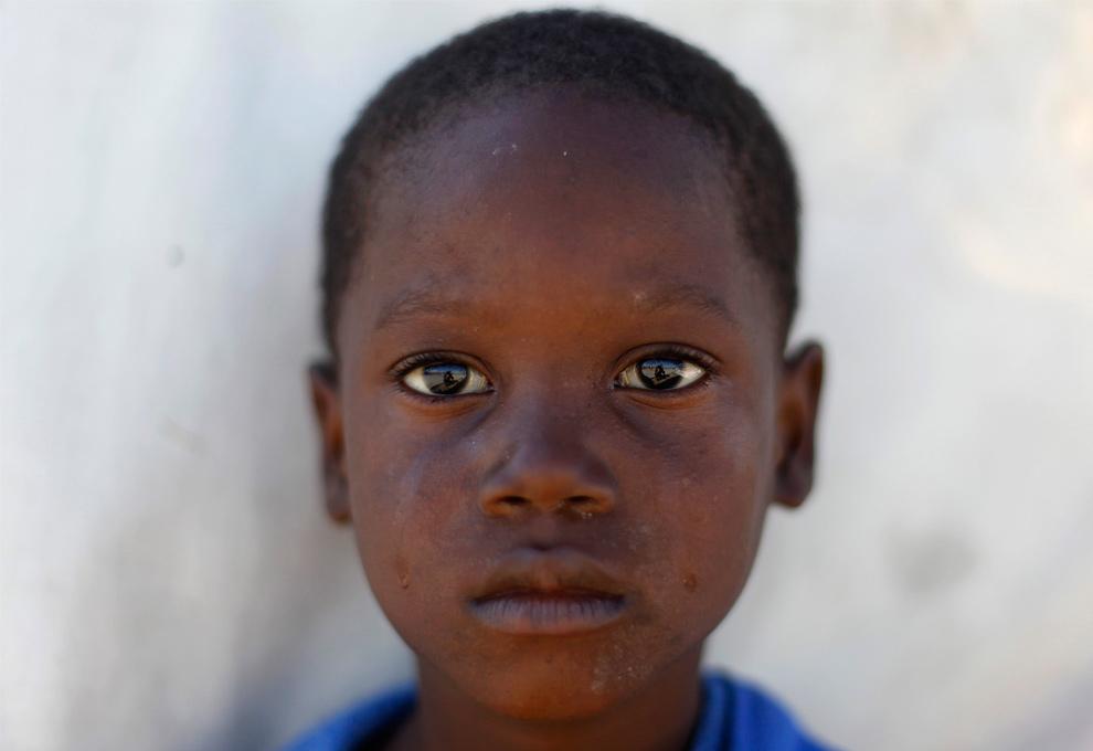 35. Мальчик – жертва землетрясения – в Порт-о-Пренс 21 января 2010 года. (REUTERS/Carlos Garcia Rawlins)