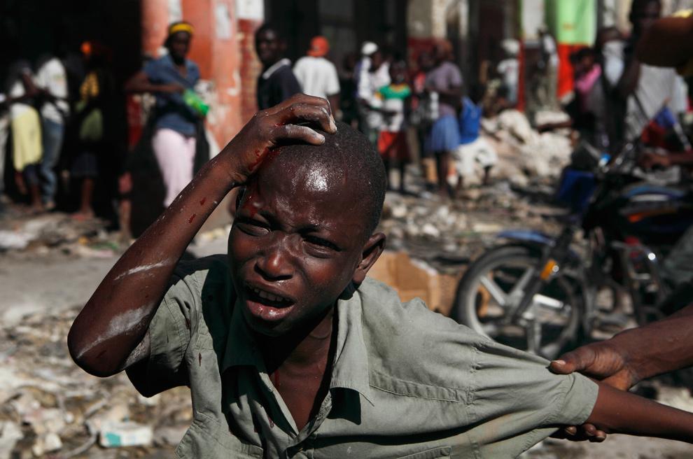 41. Мальчик с окровавленной головой корчится от боли после того, как его избили за участие в воровстве в разрушенном землетрясением магазине в Порт-о-Пренс 21 января 2010 года. (AP Photo/Ramon Espinosa)
