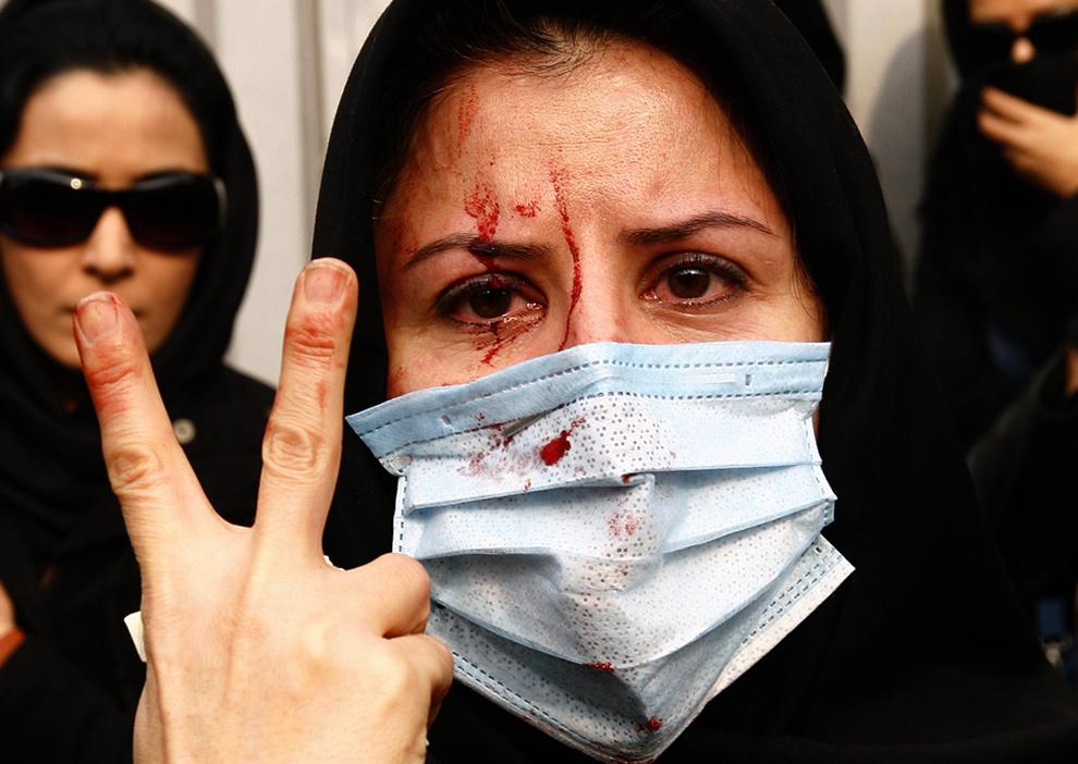 15. Раненная сторонница иранской оппозиции показывает знак виктори во время столкновения с полицией 27 декабря 2009 года в Тегеране. (AMIR SADEGHI/AFP/Getty Images)