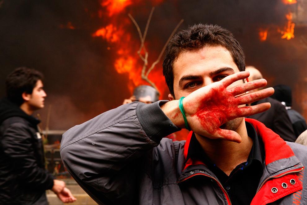 22. Сторонник оппозиции прикрывает лицо окровавленной рукой во время протестов в Тегеране 27 декабря 2009 года. (AMIR SADEGHI/AFP/Getty Images)