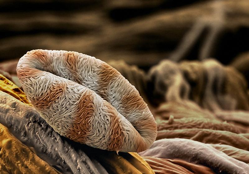 5) Благодаря извилистой поверхности пыльцы айвы (Chaenomeles), влага впитывается быстрее, когда пыльцевое зерно достигает цветка. «Чем быстрее увлажнение, тем быстрее формируется  пыльцевая трубка, - объясняет швейцарский фотограф Мартин Оггерли, научный сотрудник госпиталя Университета Базеля. – Это очень важно для оплодотворения». (Martin Oeggerli)