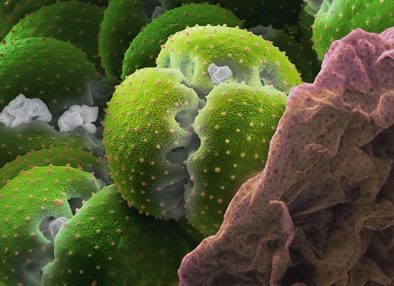 11) Пыльца мухоловки (Dionaea muscipula) более чем в 15 раз крупнее пыльцы незабудки: таким образом, прямой зависимости между размером цветка и пыльцевых зерен нет. (Martin Oeggerli)