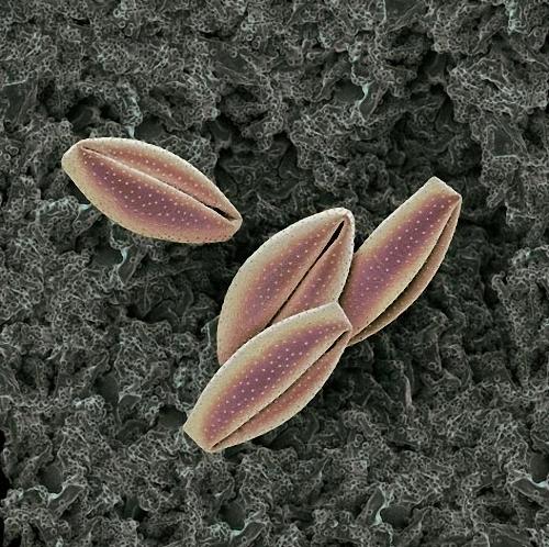 14) Пыльцу японского кринума окружают длинные броские лепестки, привлекающие насекомых-переносчиков. Некоторые трансформации пыльцевых зерен  вполне объяснимы. Другие до сих пор непонятны и требуют изучения. (Martin Oeggerli)