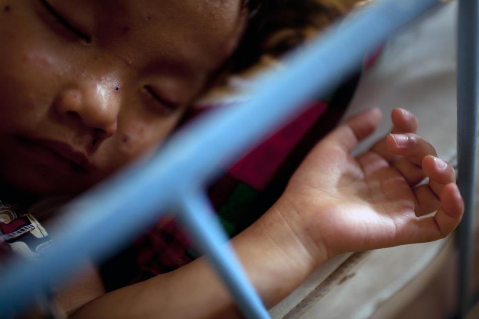 1. Ребенок спит на сончасе в приюте Маи Хоа в Ан Нон Тай во Вьетнаме 2 октября 2009 года. Дети с ВИЧ хотят ходить в обычную школу, однако родители других учеников боятся, что их дети могут заразиться. (Justin Mott/The New York Times)