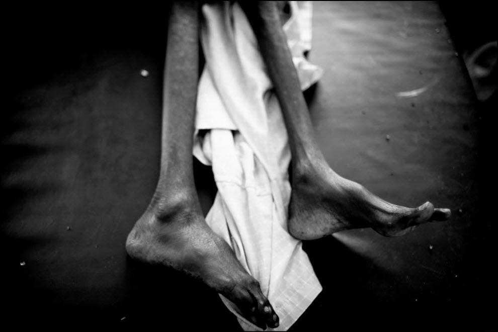 03) Пациент в госпитале лагеря Дадааб.