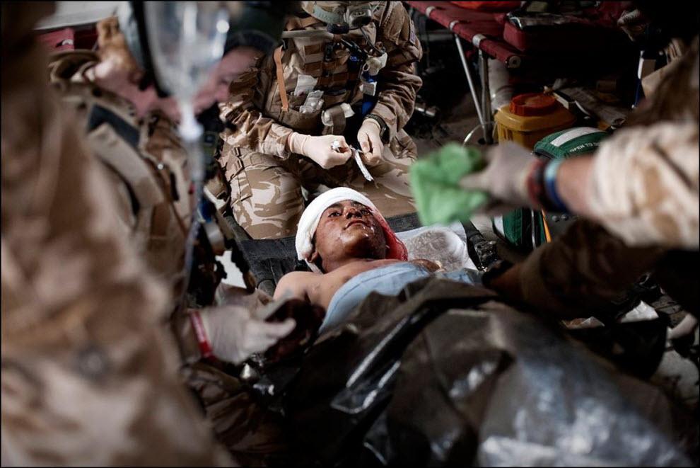 10) Врачи оказывают помощь девятлетнему раненому афганскому мальчику.
