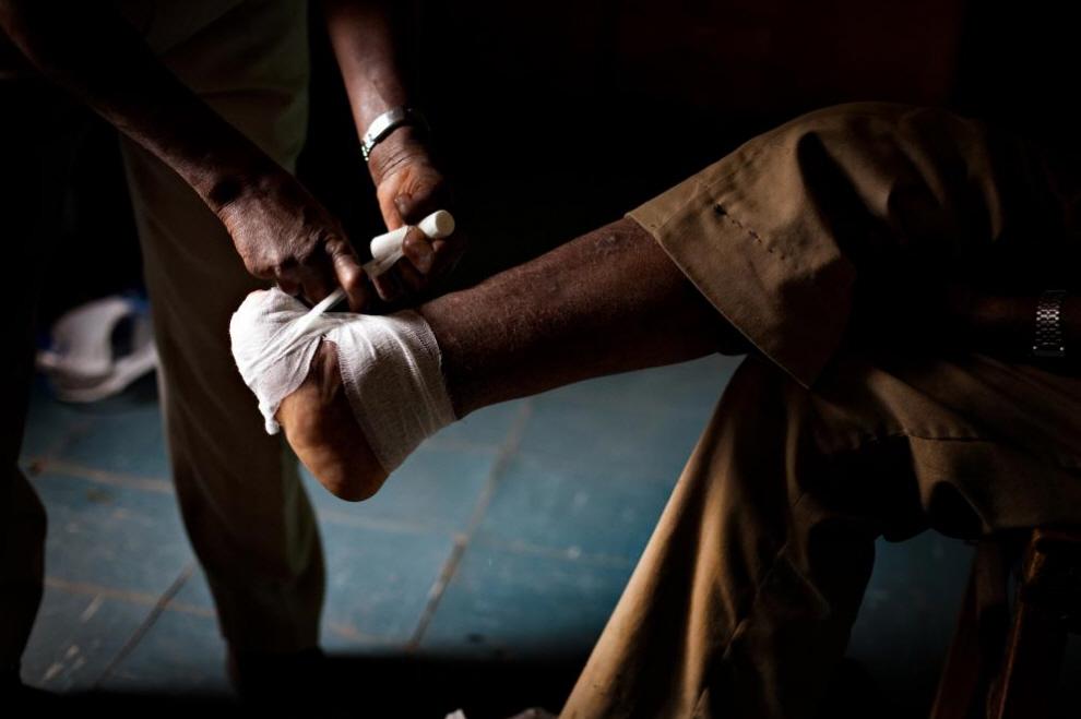 2. Медработник бинтует пациенту ногу, пораженную проказой. (Agton Strom)
