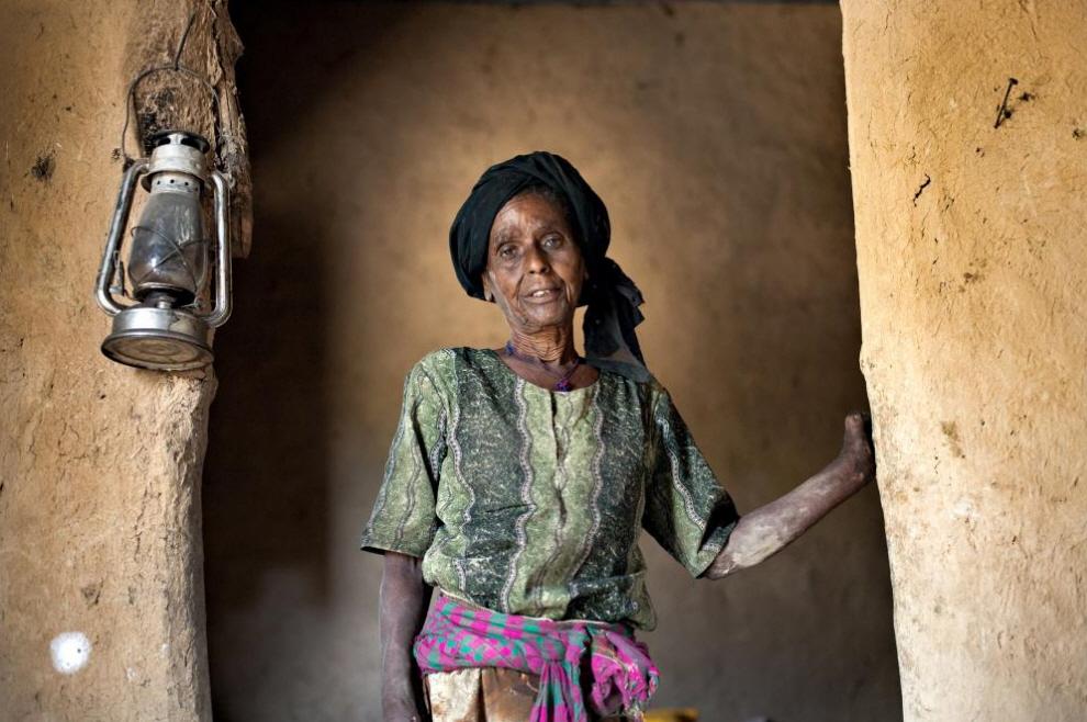 6. Женщина с проказой в своем обновленном доме. (Agton Strom)