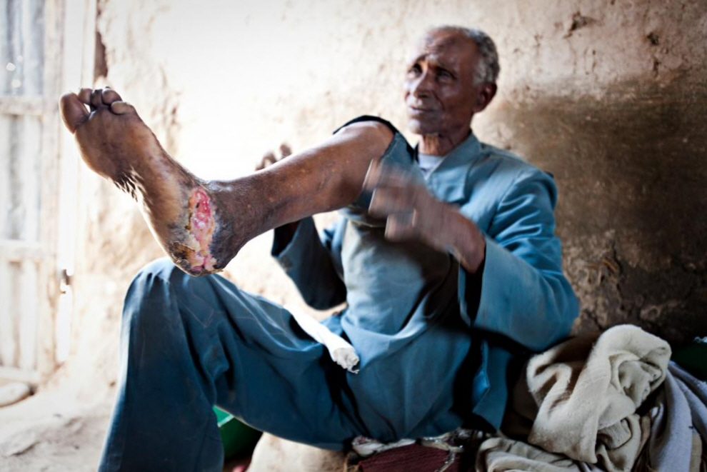11. Мужчина перед обработкой язвы, вызванной проказой. (Agton Strom)