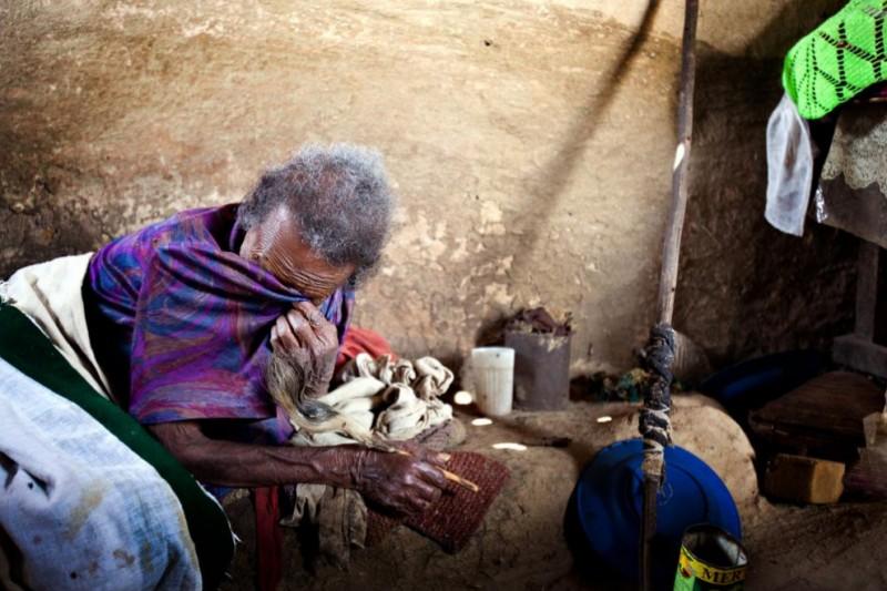 lepra16 800x533 Деревня прокаженных в Эфиопии
