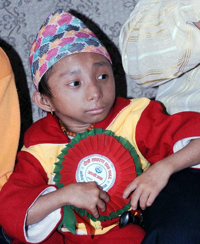 1163 Умер самый маленький человек в мире