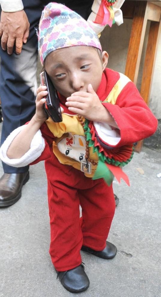 1446 537x990 Умер самый маленький человек в мире