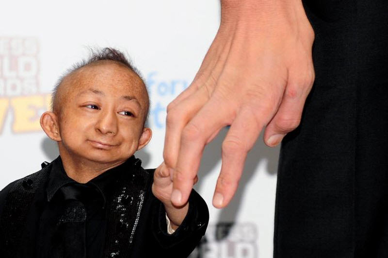360 Умер самый маленький человек в мире