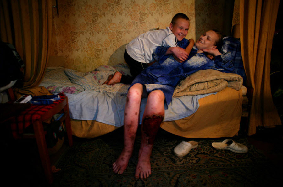 415 Украина: секс, наркомания, бедность и СПИД (Часть 1)