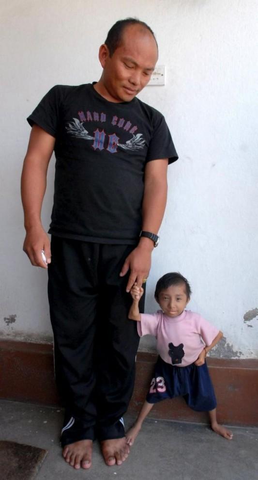 927 533x990 Умер самый маленький человек в мире