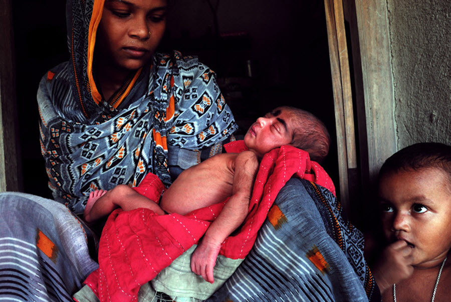 330 Детская смертность в Индии