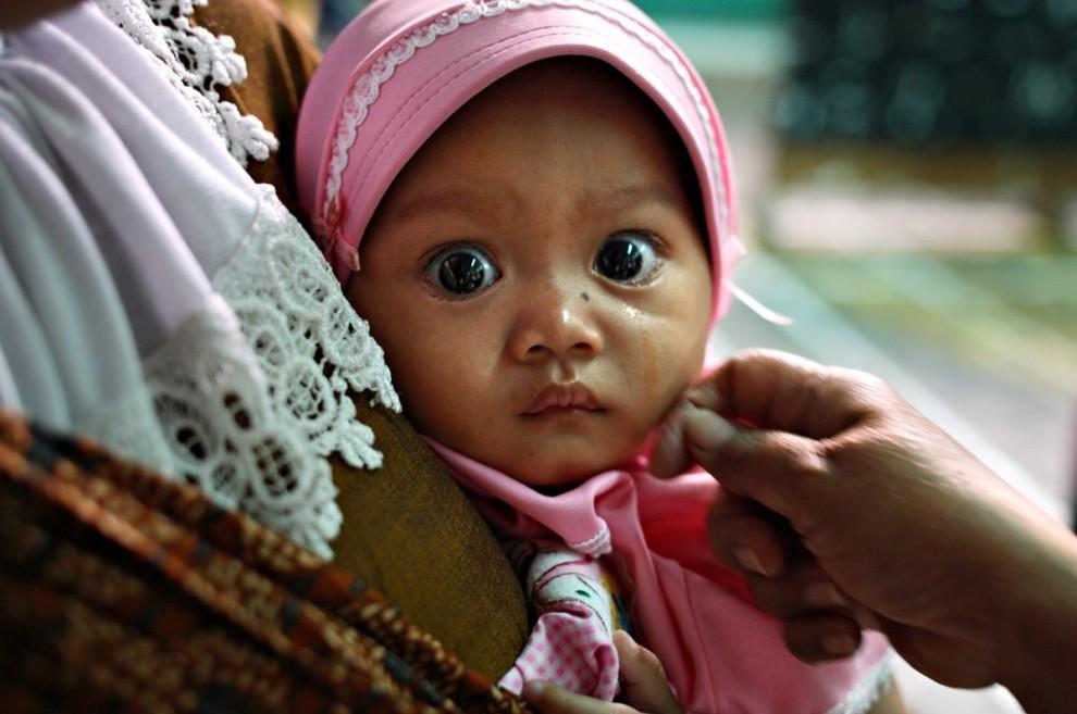 20100621070916196 990x657 Обрезание девочек в Индонезии