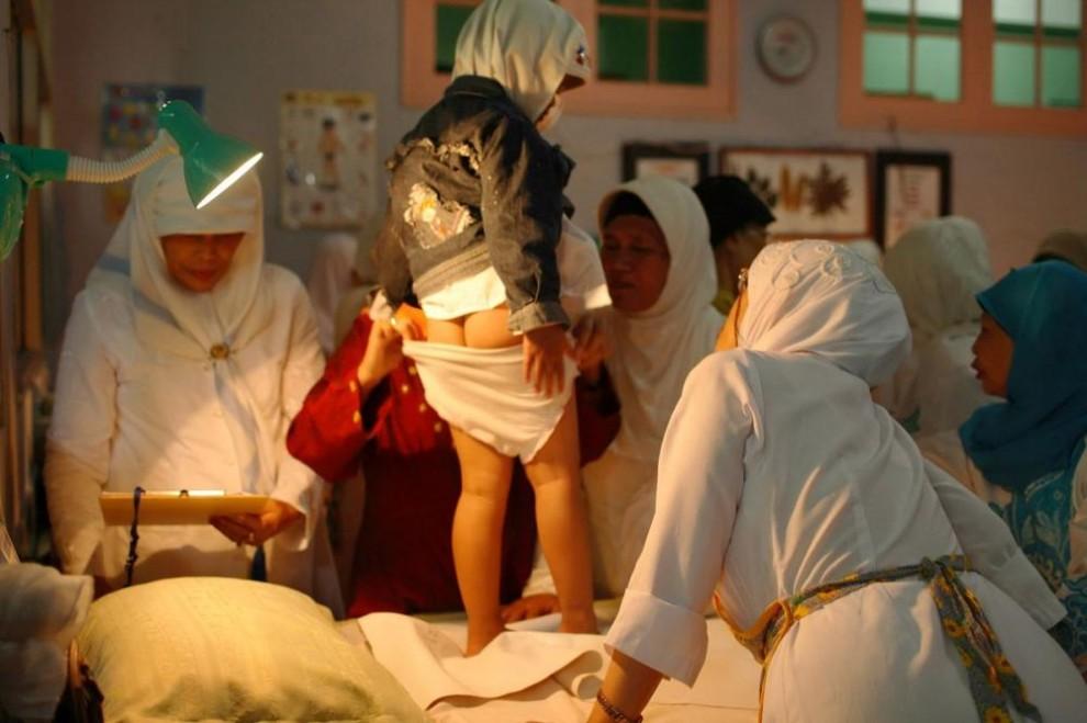 Обрезание половых органов фото