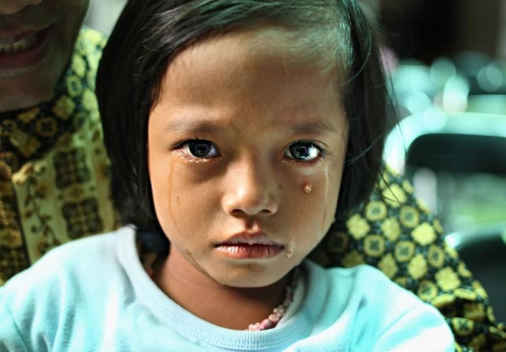 20100629 990x688 Обрезание девочек в Индонезии