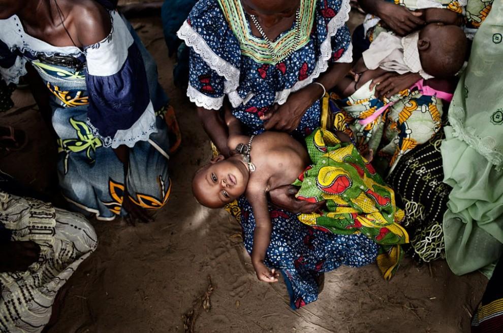 nigerfoodcrisis01 990x657 Продовольственный кризис в Нигере