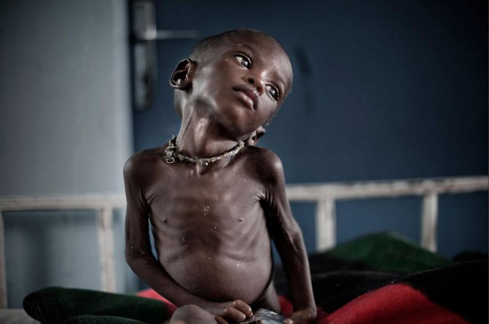 nigerfoodcrisis02 990x657 Продовольственный кризис в Нигере