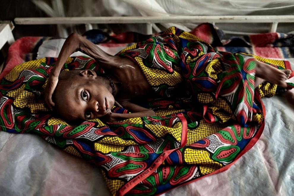 nigerfoodcrisis23 990x660 Продовольственный кризис в Нигере
