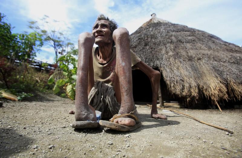 2170 800x522 Проказа в Восточном Тиморе