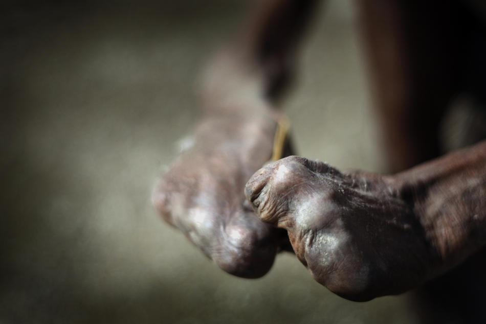 Проказа восточного тимора
