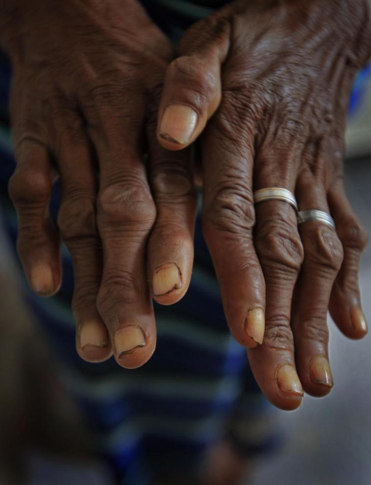 Kusta Timor Timur