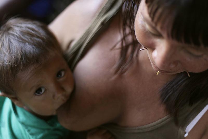 0631 Dokter di belantara hutan tropis di Brazil