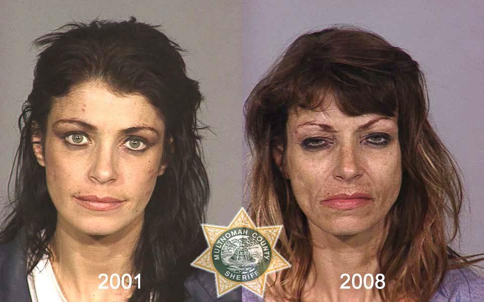 0155 Последствия употребления тяжелых наркотиков
