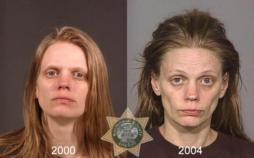 0652 Последствия употребления тяжелых наркотиков