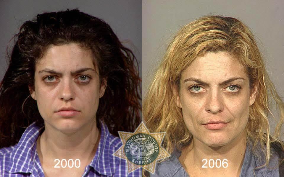 11169 Последствия употребления тяжелых наркотиков