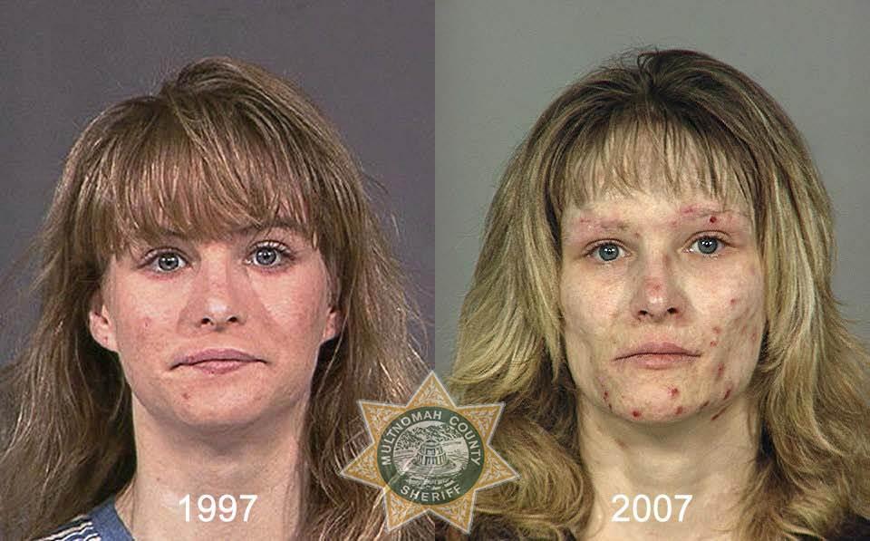 14111 Последствия употребления тяжелых наркотиков
