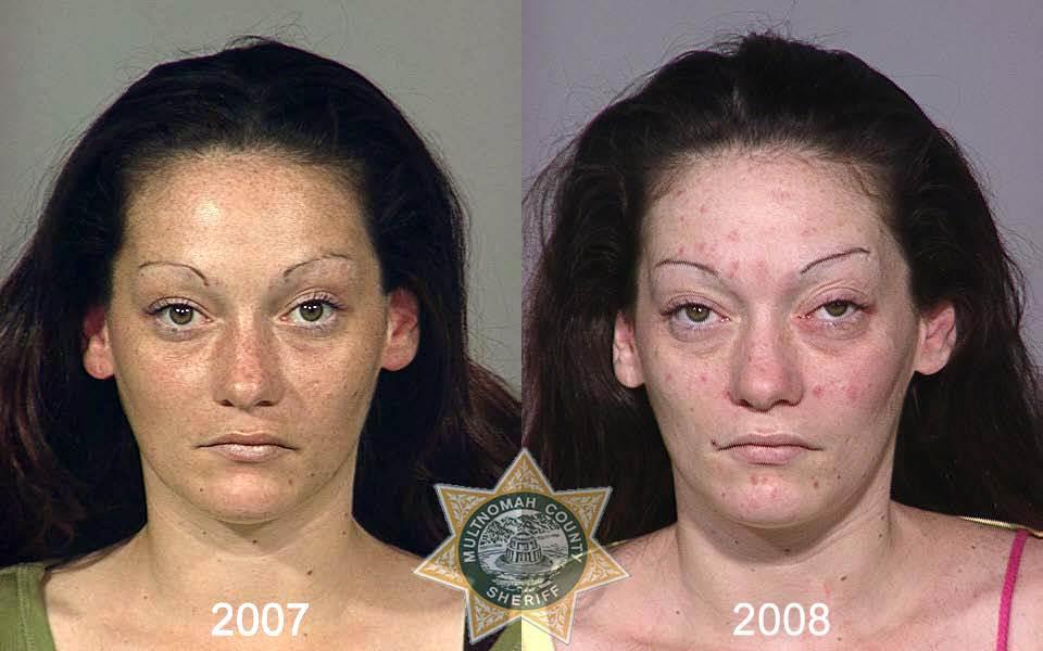2068 Последствия употребления тяжелых наркотиков