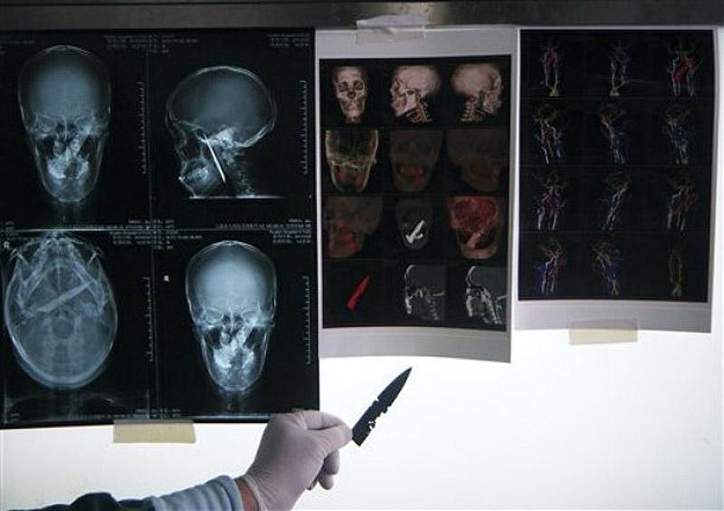 610x Китаец прожил четыре года с ножом в черепе