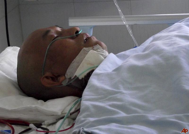 li fuyan 2011 2 18 11 30 24 Китаец прожил четыре года с ножом в черепе