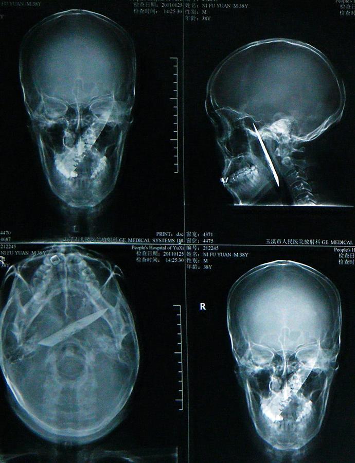 pb 110218 knife skull ps.photoblog900 Китаец прожил четыре года с ножом в черепе