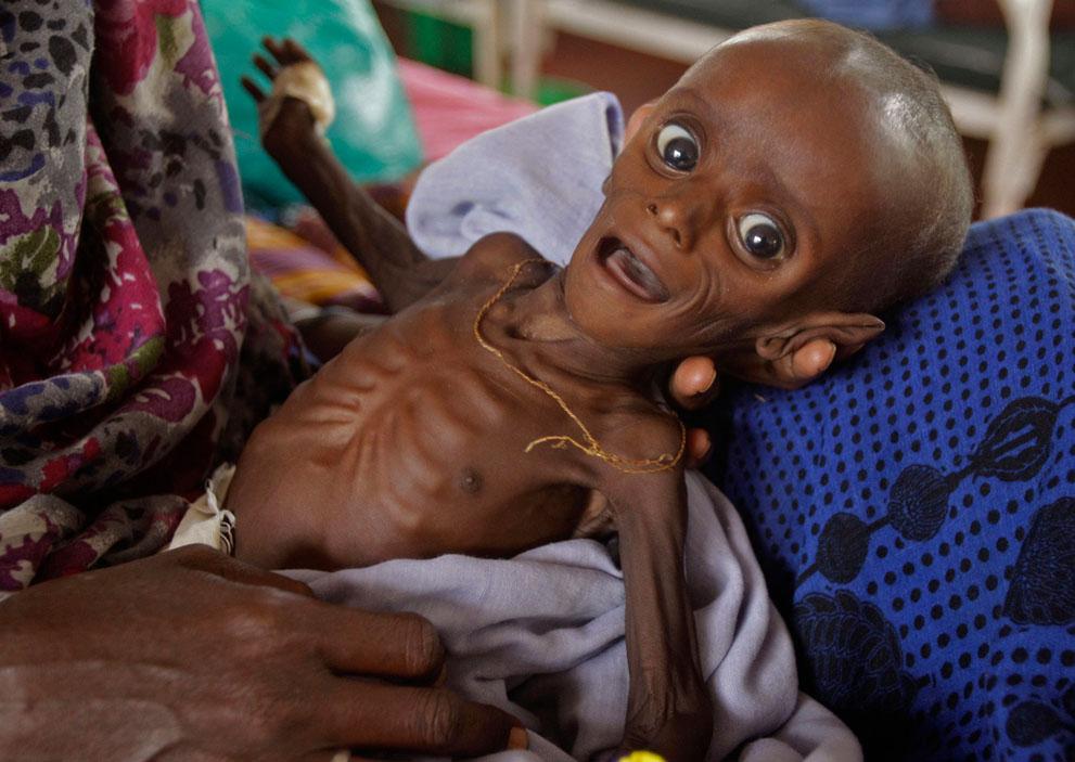 hungymamafrika01 Голод в Восточной Африке