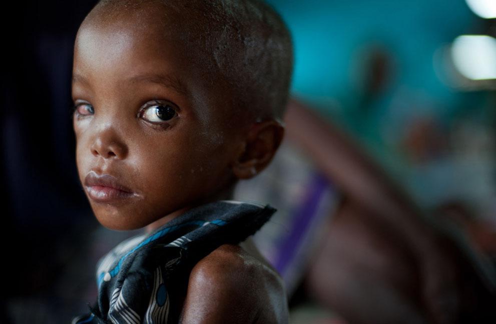 hungymamafrika06 Голод в Восточной Африке