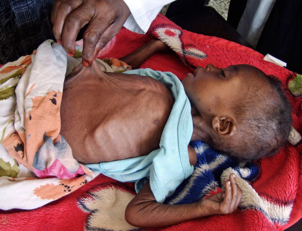 hungymamafrika21 Голод в Восточной Африке