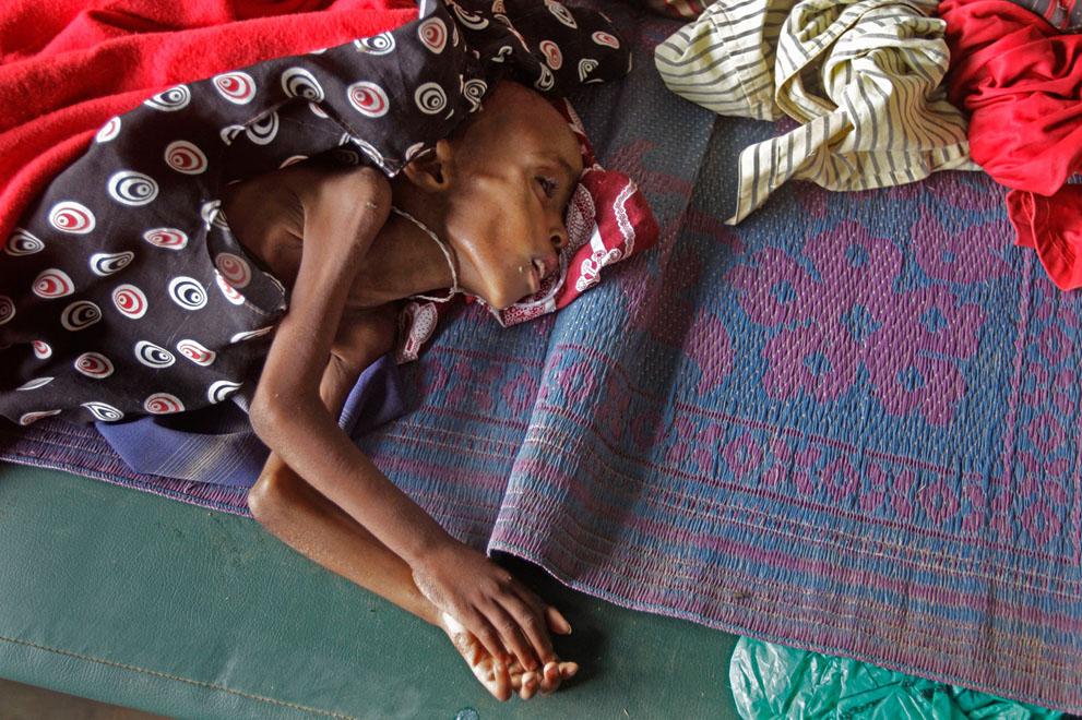 hungymamafrika28 Голод в Восточной Африке