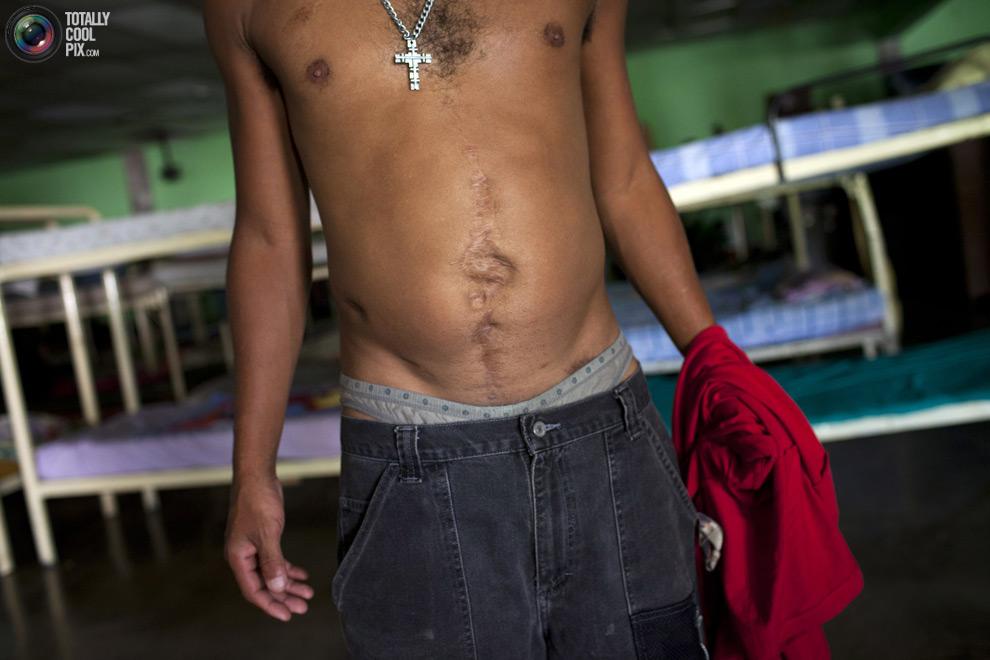 Клиника по реабилитации наркоманов в Венесуэле