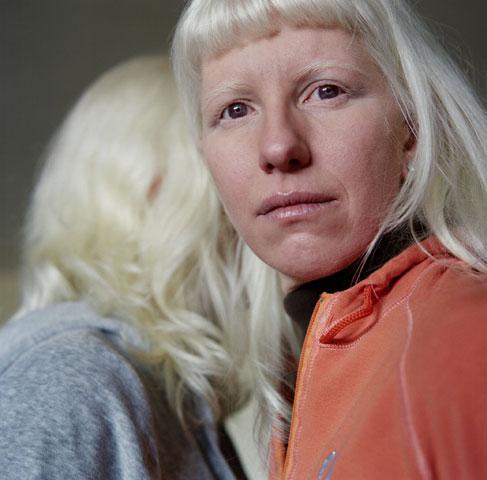 2447 альбиносы паолы де грене