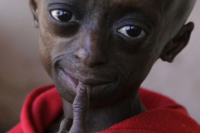 girl01 12 летняя девочка старушка из ЮАР