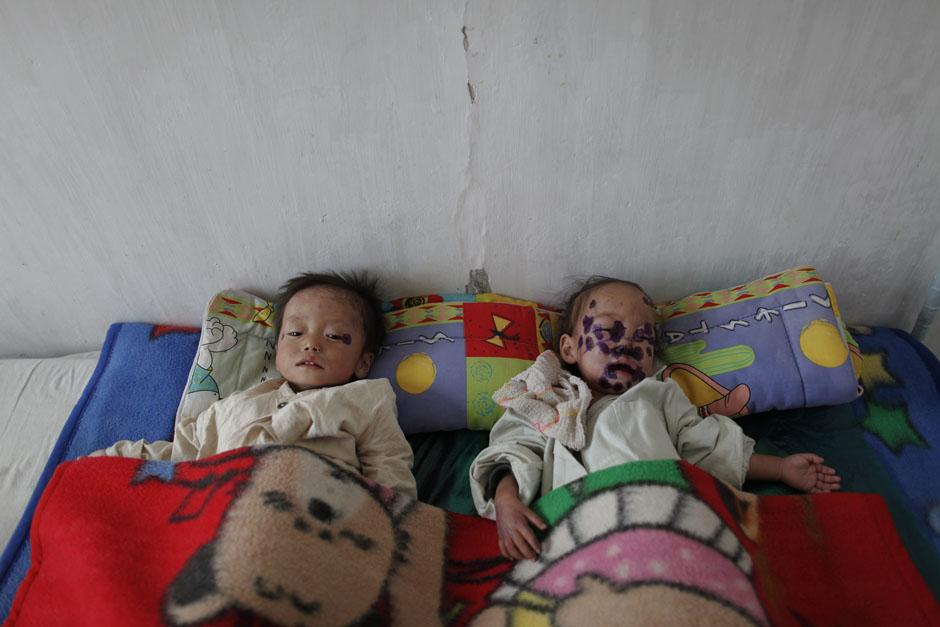 3109 Kelaparan di Korea Utara